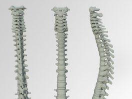 טיפול בכאבי גב על ידי פיזיותרפיה