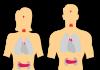 סיבות לנפיחות בבטן
